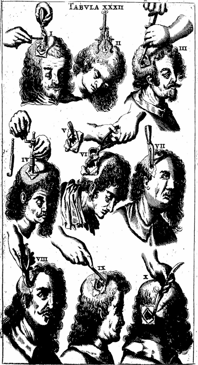 """A veritable """"How to Trepan"""" guide from Scultetus (1674)"""