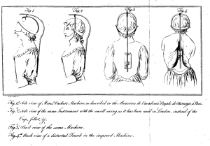 The neck swing, from Timothy Sheldrake's 'Essay on the Various Causes and Effects of the Distorted Spine', 1783