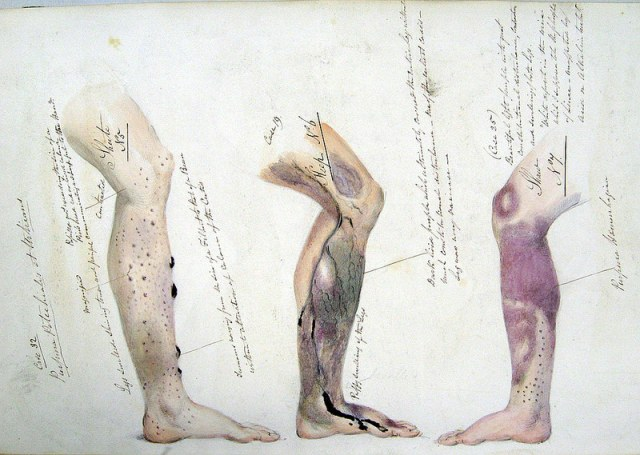 Page from the journal of Henry Walsh Mahon showing the effects of scurvy, from his time aboard HM Convict Ship Barrosa (1841-2)  Source: Wikimedia Commons