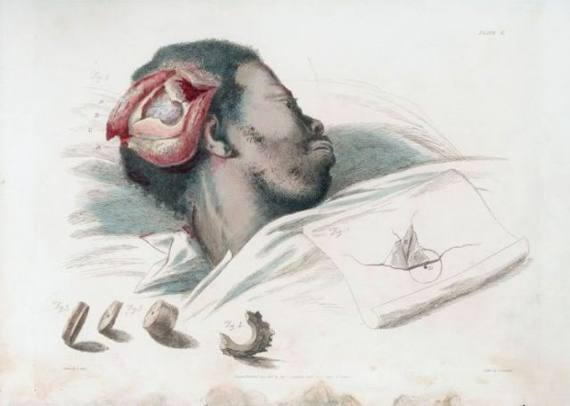 The operation of Trepan, from Illustrations of the Great Operations of Surgery: Trepan, Hernia, Amputation, Aneurism and Lithotomy, by Charles Bell, 1815. (John Martin Rare Book Room at the Hardin Library for the Health Sciences, University of Iowa.)