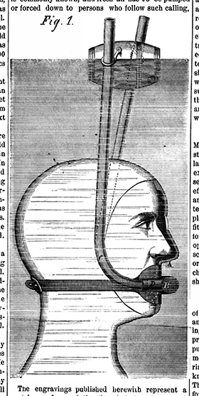 Diving Mask An inventor in Braddock's Field, Penn, added a simple valve to the mouthpiece for exhaling and inhaling air.