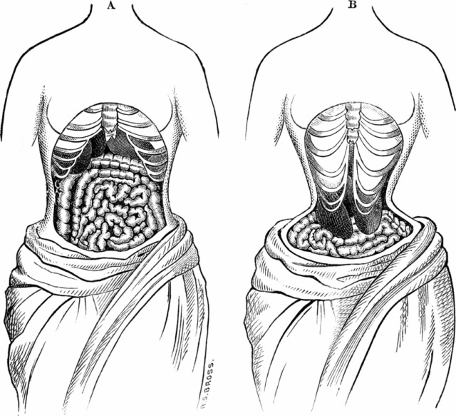 "From ""Physiology for Young People"" p. 84. Fig. 11.A purports to show the natural position of internal organs. B, when deformed by tight lacing of a corset. In this way the liver and the stomach have been forced downward, as seen in the cut. (Public domain image via wikimedia commons.)"