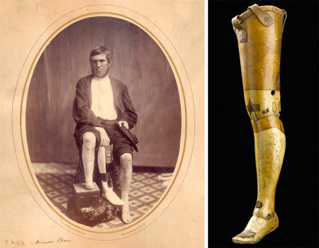 Left, this Civil War era portrait shows a veteran with a typical wood and leather prosthetic leg. Image courtesy the National Museum of Health and Medicine. Right, this Anglesey-style wooden leg was produced in Britain around 1901, and features a jointed knee and ankle and a spring-fitted heel. Image courtesy of the Science Museum / SSPL.