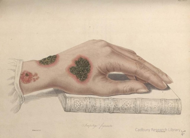 Impetigo, hand on book, from Thomas Bateman's 'Delineations of Cutaneous Diseases' (1828) Image courtesy Cadbury Research Library, University of Birmingham