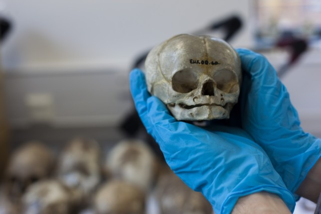 A study of 54 dead babies was not all bad news.