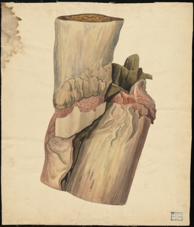 Teaching watercolor of bone and tissue: The Francis A. Countway Library of Medicine