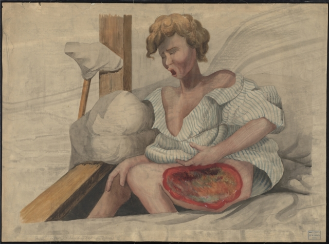 The Francis A. Countway Library of Medicine Teaching watercolor of a gangrenous ulcer on the thigh of a boy