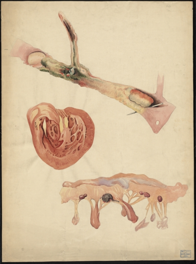 Center for History of Medicine: The Francis A Countway Library of Medicine: Teaching watercolour of phlebitis and sepsis