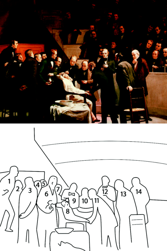 Fig. 1.  (top  ) Robert Cutler Hinckley,  The First Operation with Ether  , 1893. Oil on canvas, 8′× 10′. Boston Medical Library in the Francis A. Countway Library of Medicine, Boston, Massachusetts. Reproduced with permission.  (bottom  ) Key for identifying individuals in the painting. (1) Unidentified newspaper reporter; (2) John Call Dalton (1825–1889), student, Harvard Medical School; (3) William Williamson Wellington, M.D. (1814–1896), referring physician for patient Edward Gilbert Abbott; (4) Abel Lawrence Peirson, M.D. (1794–1853), Consulting Surgeon, Massachusetts General Hospital; (5) Charles Hosea Hildreth (1825–1884), student, Harvard Medical School; (6) William Thomas Green Morton (1819–1868), anesthesiologist; (7) Jonathan Mason Warren, M.D. (1811–1867), Visiting Surgeon, Massachusetts General Hospital; (8) Edward Gilbert Abbott (1825–1855), the patient; (9) John Collins Warren, M.D. (1778–1856), Professor of Anatomy and Surgery, Harvard Medical School, Chief of Surgery and Founder of Massachusetts General Hospital, operating surgeon; (10) Ebenezer Hopkins Frost (1824–1866), music teacher, received general anesthesia for dental extraction on September 30, 1846; (11) Charles Frederick Heywood, M.D. (1823–1893), House Surgeon, Massachusetts General Hospital; (12) Henry Jacob Bigelow, M.D. (1818–1890), Professor of Surgery, Harvard Medical School, Visiting Surgeon, Massachusetts General Hospital; (13) Augustus Addison Gould, M.D. (1805–1866), physician, author, and conchologist, Secretary, Massachusetts Medical Society; (14) Solomon Davis Townsend, M.D. (1793–1869), Surgeon, Massachusetts General Hospital.