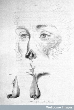 Illustration by Charles Turner from Carpue's book, digitised by the Wellcome Library and released under Creative Commons CC BY 4.0 licence.