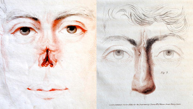 Hand-colored engravings from Joseph Constantine Carpue's treatise, published in 1816, on the first example in Western medicine of nasal reconstruction surgery. WELLCOME LIBRARY, LONDON
