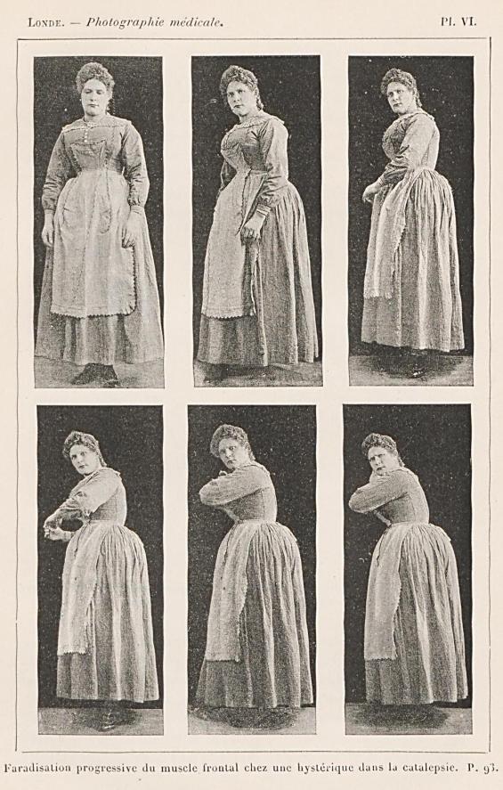 """Figure 5: """"Faradisation progressive du muscle frontal chez une hystérique dans la catalepsie"""", Albert Londe, La Photographie Médicale, 1893, p.93."""